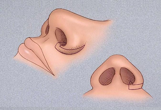 исправление формы ноздрей киев