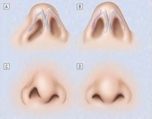 кончик носа исправить киев