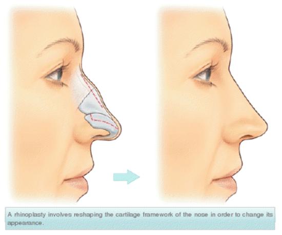 устранение горбинки носа кииев
