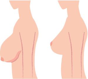 подтяжка груди киев пластический хирург